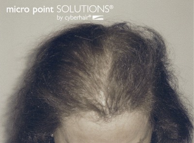Click to find out more about Hair Replacement Solutions